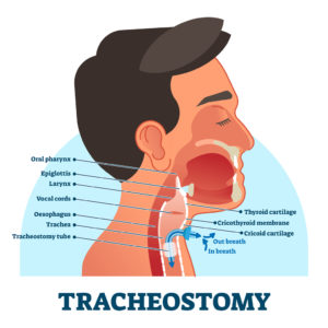cartoon illustration of a man showing a cross-section of his mouth and throat with the insertion of a tracheostomy tube